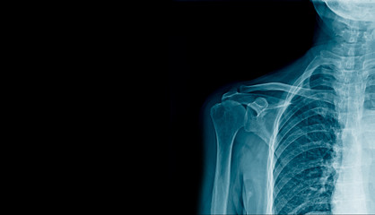 shoulder x-ray banner in blue tone, hight quality human shoulder with space for text