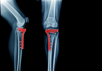 fracture tibia bone and post operation fixation anterior and lateral view x-ray