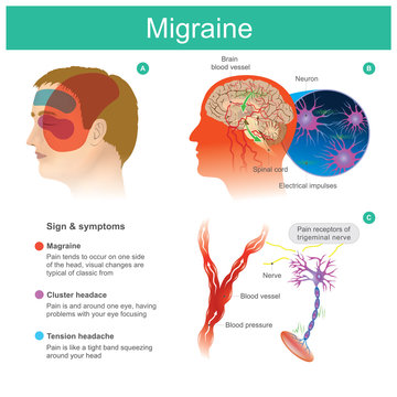 Migraine. Headache, pain, tend cooccur on one side of the head.Pressured blood vessels reduce blood flow for brain. Illustration.