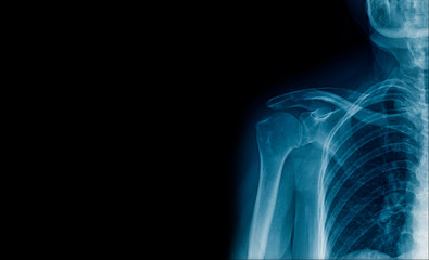 x-ray image shoulder single side, high quality x-ray shoulder banner or space for text