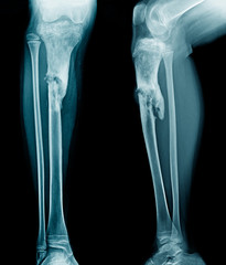 x-ray leg of young person show osteomyelitis of tibia bone