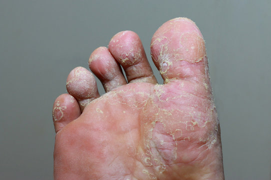 Athlete's foot - tinea pedis, fungal infection