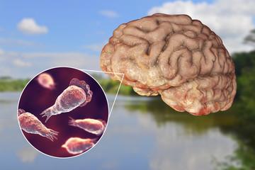 Brain-eating amoeba infection, naegleriasis. Trophozoite form of the parasite Naegleria fowleri and brain encephalitis caused by amoeba, 3D illustration