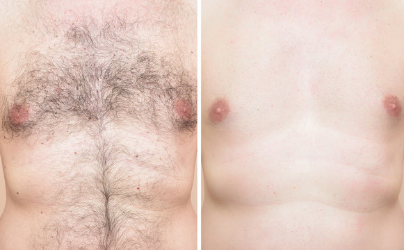 Chest of a man before and after trimming chest hair