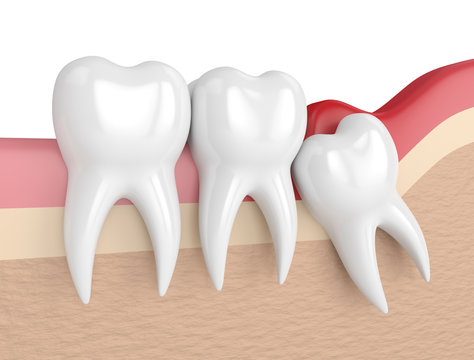 3d render of  wisdom mesial impaction with pericoronitis