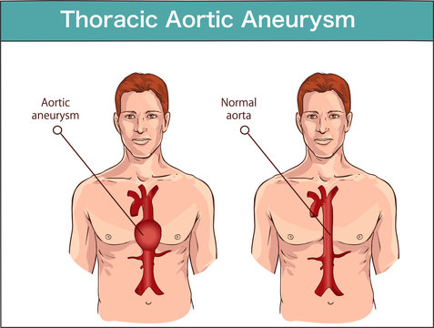 vector illustration of a Abdominal aortic aneurysm