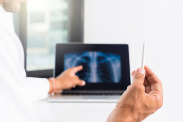 Doctor show cigarets while explaining lungs x-ray on computer screen to patient