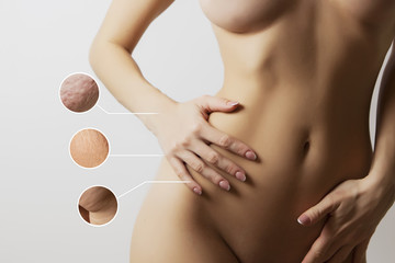 woman  body before and after liposuction