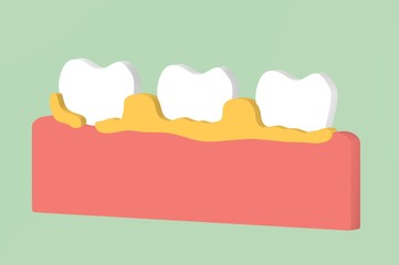 tooth periodontal disease with dental plaque or tartar