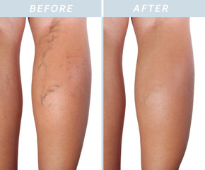 Varicose veins on the legs after and before treatment