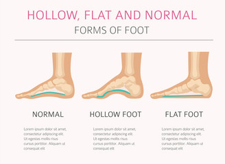 Foot deformation types,  medical desease infographic. Hollow, flat and normal foot