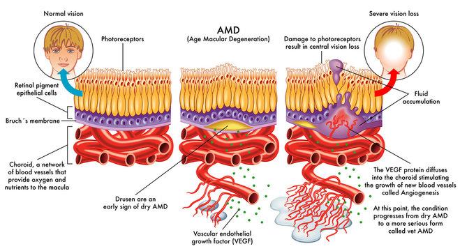 medical vector illustration of symptoms of AMD (age macular degeneration)