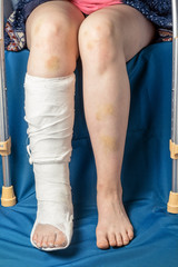 leg fracture in gypsum and crutches, close up only legs of sitting injured girl with bruises
