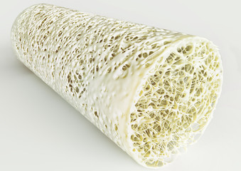 Cross section of an advanced osteoporosis -high details - Stage 4 - 3d rendering