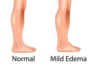 Mild edema with normal leg
