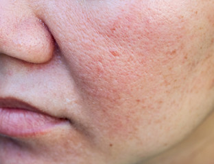Close-up of acne on the skin, Acne on the face caused by Hormone, The scars, wrinkle and acne inflammation on the face skin