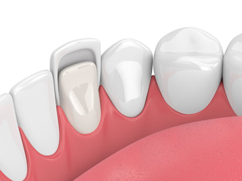 3d render of teeth with veneer