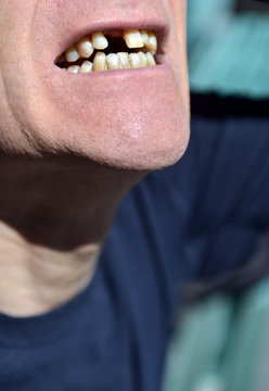 mouth missing front tooth awaiting implant in senior male citizen