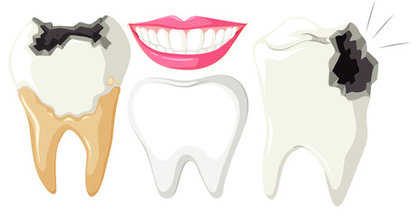 Tooth Decay on White Background
