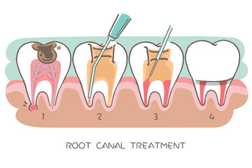 tooth with root canal treatment