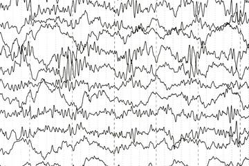 Abnormal EEG  brain wave