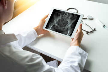 Doctor watching x-ray of hips bones on a digital tablet