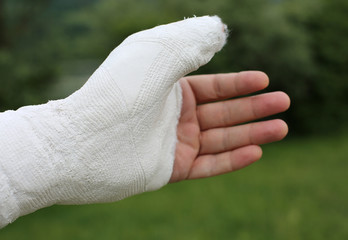hand with white medical plaster cast after breaking the phalanx