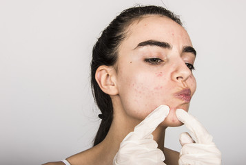 beautiful young girl with problematic skin, acne problem concept