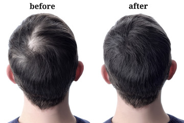 Men'shair after using cosmetic powder for hair thickening. Before and after Wall mural