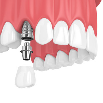 3d render of upper jaw with teeth and dental premolar implant