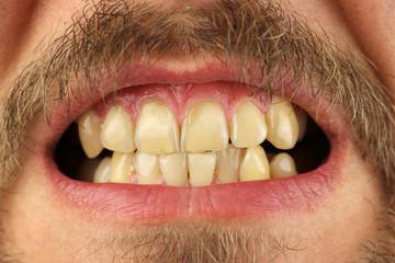 closed human teeth grin, macro