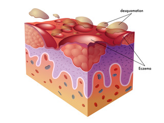 vector medical illustration of the symptoms of eczema