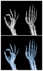 hand x-ray collection