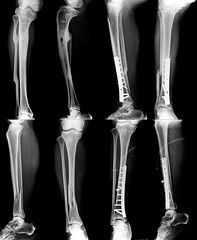 leg fracture x-ray and fixed in content with gray tone