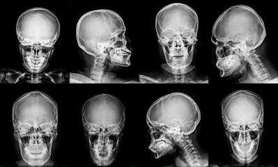 collection skull x-ray in gray tone