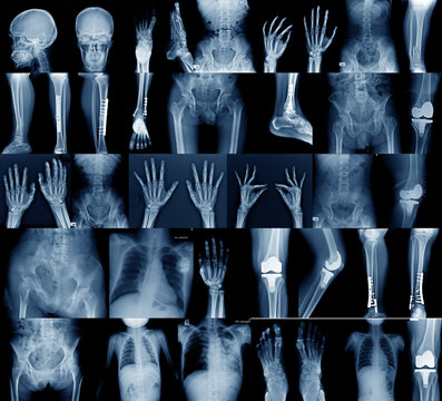 collection x-ray image skull, shoulder, hip, knee joint , scoliosis spinne and small joint in content