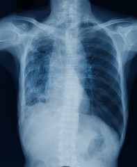 high quality chest x-ray image in blue tone
