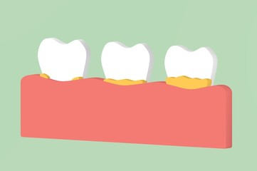 step of tooth periodontal disease with dental plaque or tartar