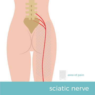 sciatic nerve anatomy. illustration showing the schematic course of the nerve and the place where the pain arises. sciatica