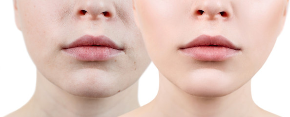 Perfect woman's lips before and after retouch.