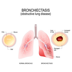Normal bronchus and bronchiectasis. obstructive lung disease