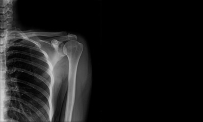 x-ray shoulder banner for website or work print