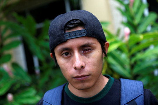 Kevin Pavon, who lost his eye in recent protests against Nicaraguan President Daniel Ortega's government, is pictured in Managua