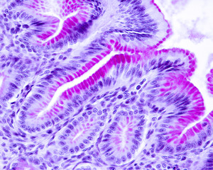 Gastric mucosa. Epithelium