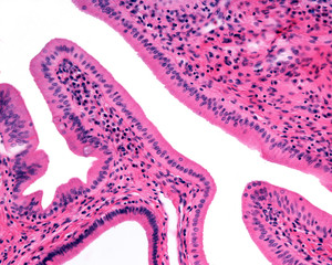 Simple columnar epithelium. Ampulla of Vater