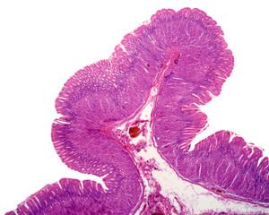 Gastric mucosa
