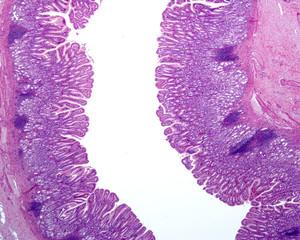 Gastric mucosa. Pyloric region