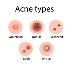 Acne types vector illustration. Cosmetology. Derma problems