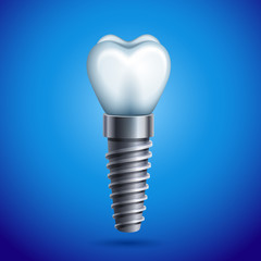 Vector illustration - dental implant icon