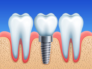 Vector illustration - dental implant and teeth